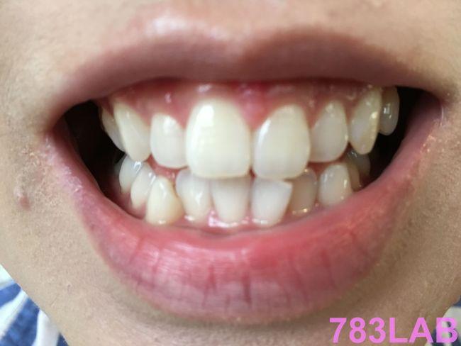 ディノベートデンタルホワイトプロを1ヶ月使用後の歯の画像