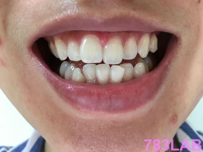 ディノベートデンタルホワイトプロを使用して2週間経過後の白くなった歯の画像