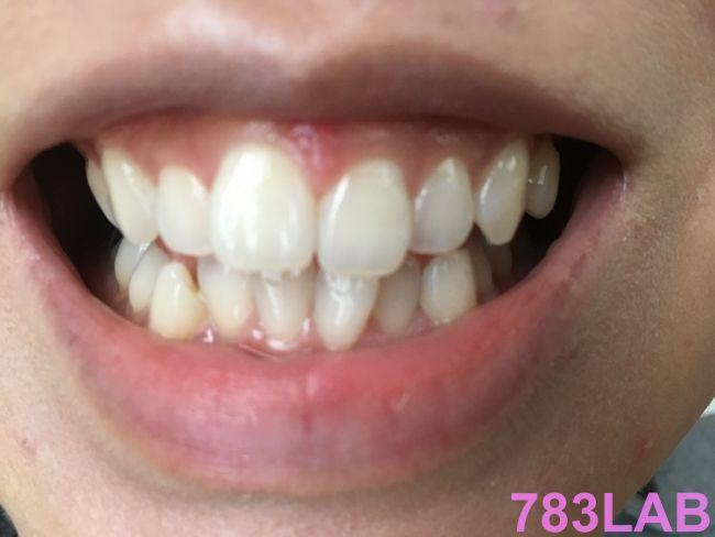ディノベートを3週間ホワイトニングした女性の歯