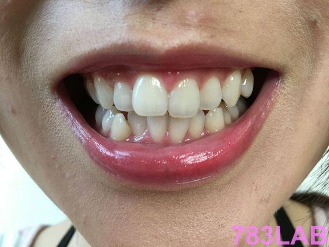 ディノベートを1週間ホワイトニングした女性の歯