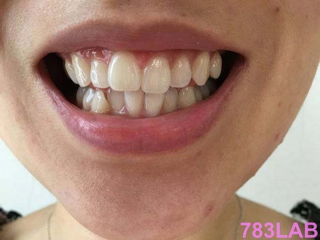 ディノベートデンタルホワイトを使う前のライターの歯の画像