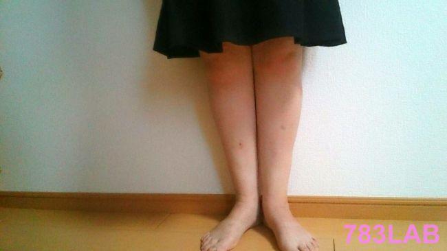 ビキャクイーンを履いて1か月後の裸足の画像