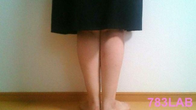 ビキャクイーンを履いて1ヶ月と2週間後の裸足の背面画像