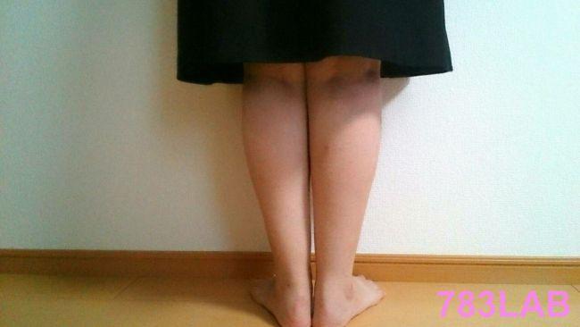 ビキャクイーンを履いて1ヶ月と3週間後の裸足の背面画像
