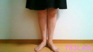 ビキャクイーン(bikyaqueen)を履いて2ヶ月経過後の裸足の正面の画像