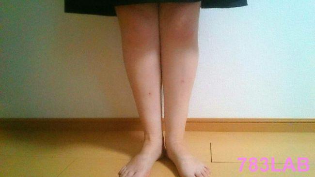 ビキャクイーンを履いて2週間後の裸足の写真
