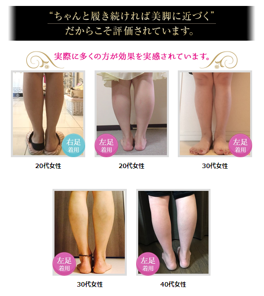 ビキャクイーンで美脚になった女性5人の足