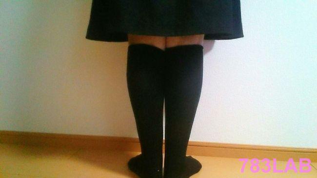 ビキャクイーンを2週間はいている女性の足、背面