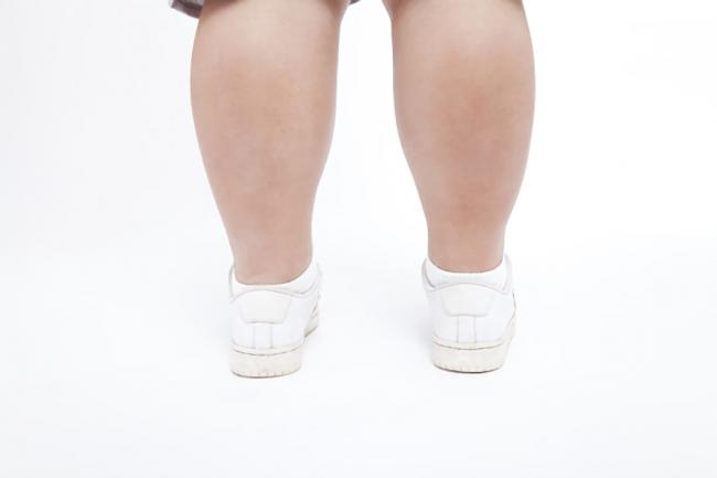 女性の太い脚